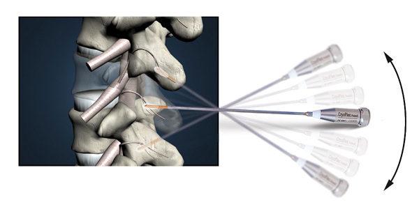 Nowe zabiegi w naszej klinice: Kriolezja oraz Orthokine®